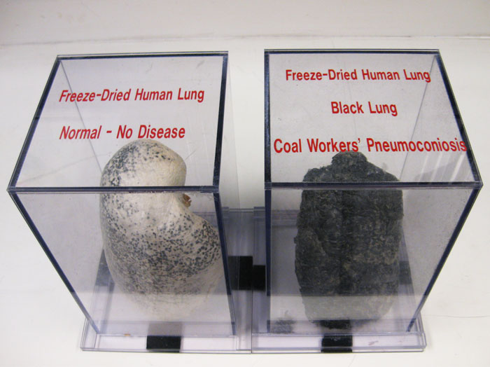 Epidemic of black lung disease in central Appalachia