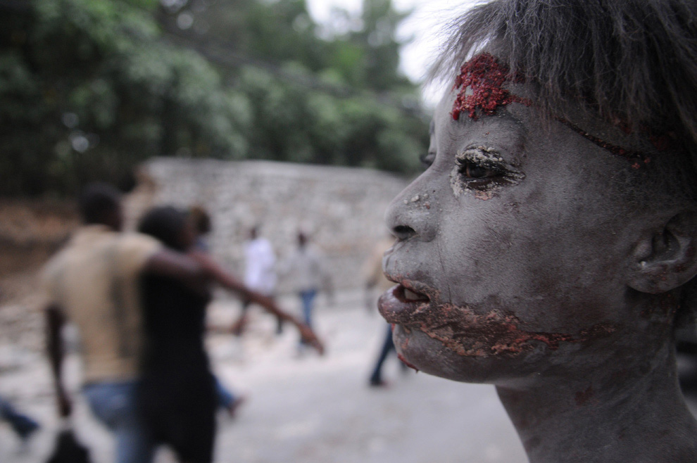 An Injured Person in Port-au-Prince