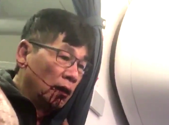 'Just kill me': The moment bloodied United passenger mumbled about suicide after he was body-slammed by cops and dragged off overbooked flight to make room for airline STAFF