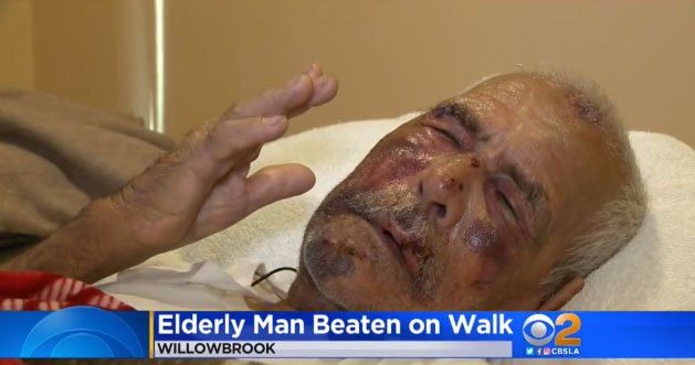 "Man, 92, Hit With Brick In Brutal July 4th Attack, told ""go back to your own country"""