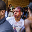 Charlottesville protester says police failed to come to his aid as he was beaten by white supremacists