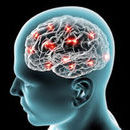 New Test Could Improve Diagnosis of Rare, Fatal Brain Disorder
