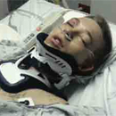 Photo: Police Taser Boy with Broken Back 19 Times